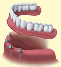 Implant Overdenture Attachments http://victoriatxdentist.com/dental-services/dental-implants