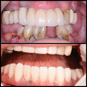 All On Four implant dentures Victoria Tx